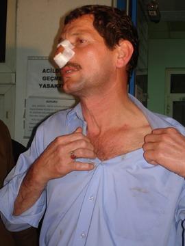 Ali Erarslana çirkin saldırı