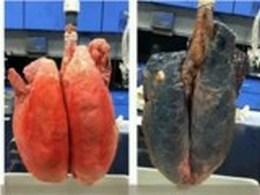 İşte Sigaranın Akciğerlere Verdiği Zarar